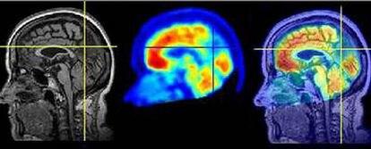 La combinación de técnicas de neuroimagen, como resonancia magnética y tomografía por emisión de positrones, permite un diagnóstico más fiable de los procesos neurodegenerativos.