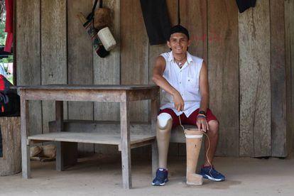 Diomedes Díaz sufrió un accidente con una mina antipersonal en el 2018. El CICR le donó una prótesis para reemplazar la pierna de madera que él mismo había tallado.
