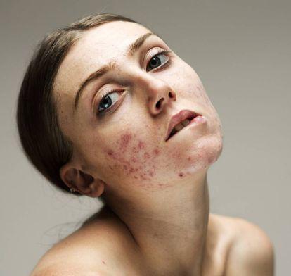 """LOUISA: """"Oímos hablar mucho sobre el peso y la imagen corporal. Pero no del acné"""". El diagnóstico: """"Acné adulto con nódulo-papuloso cicatricial. Con afectación de mejillas que le da un aspecto rosaceiforme"""", valora Cristina Eguren, de la Academia Española de Dermatología y Venereología (AEDV)."""