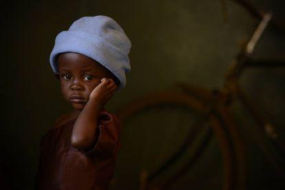Desire, de dos años vive en Balaka, Malawi, y sufre desnutrición aguda.