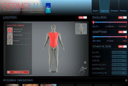 Imágenes de la aplicación DermoMap.
