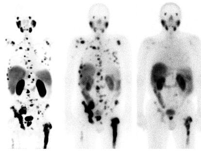 Respuesta a la teragnosis con lutecio-177 en un cáncer de próstata con metástasis, en el Hospital Universitario de Heidelberg (Alemania).