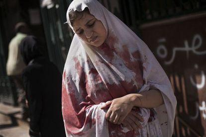Una mujer herida abandona un hospital en Alepo, en una foto de 2012.