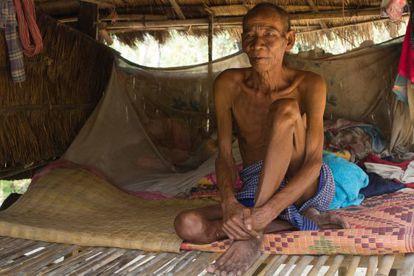 Coum Prok, de 66 años, también fue contagiado por el doctor negligente, al que considera un buen médico.