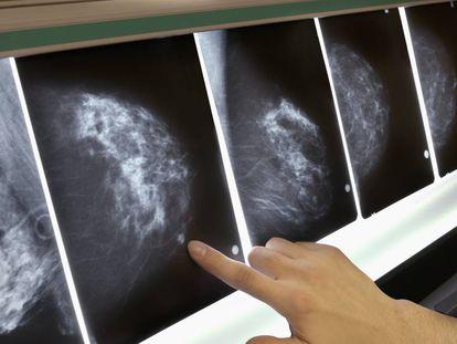 Mamografías de seguimiento de un tumor.