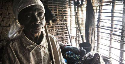 Jetou Mapuani perdió la vista a causa de la oncocercosis y su marido la abandonó.