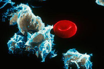 Células con leucemia (izquierda) junto a un glóbulo rojo