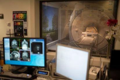 Prueba de neuroimagen de una mujer con enfermedad de Alzheimer en la Fundación CIEN.