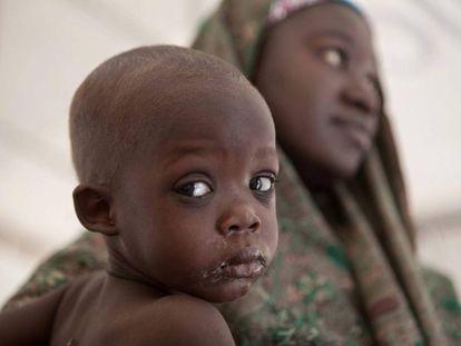 Una madre y su hijo en el campo de Dikwa.