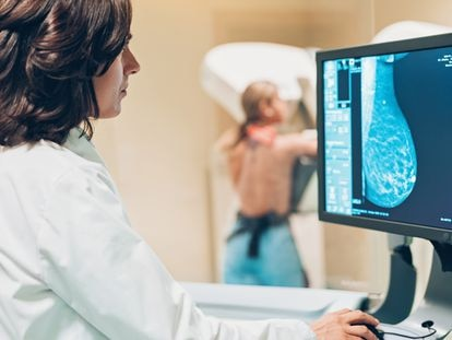 Como un traje a medida: así son los últimos avances en el cáncer de mama metastásico