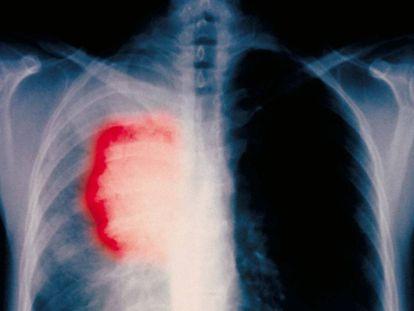 Radiografía de un paciente fumador de 58 años con cáncer de pulmón