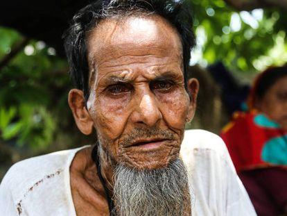 Abul, rohinyá de 76 años, llegó a Bangladesh hace dos décadas y media desde Birmania