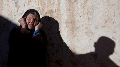 Una mujer con lepra avanzada, en un centro médico de Yawlang, Afganistán, en 2010.