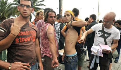 Varios manifestantes muestran los golpes sufridos al ser desalojados del parque San Telmo de Las Palmas de Gran Canaria.
