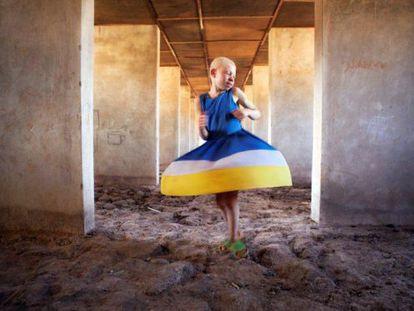 Kelen, de 11 años, en los dormitorios en construcción del centro para albinos de Kabanga, en Tanzania.