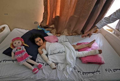 A Palestinian girl injured in an Israeli bombing on the 19th at the Shifa hospital in Gaza.