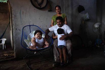 Luis Gonzales, edad 10 meses, peso 28 kilos. (México)