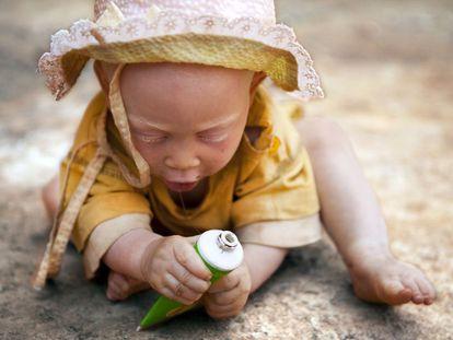 Una niña albina en Tanzania.