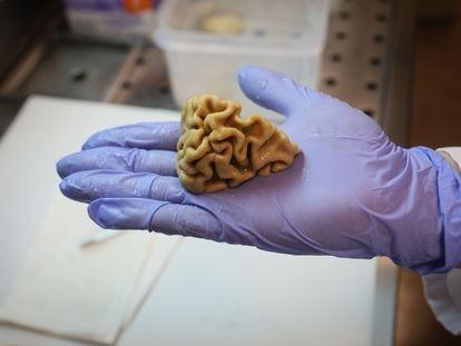 Imagen tomada en el banco de cerebros de la Fundación Hospital de Alcorcón.