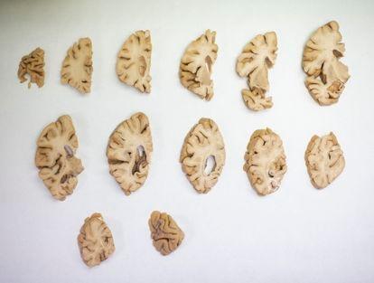 Cerebro humano disecado en la Fundación CIEN de Madrid.