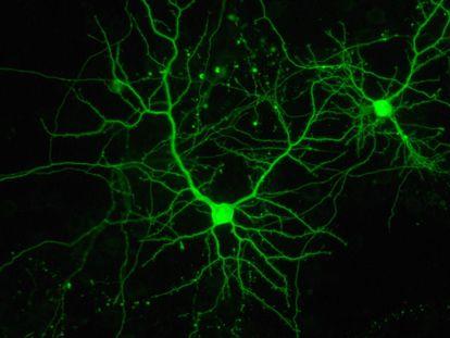 Neuronas en cultivo en el Instituto de Neurociencias español.