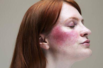 Una mujer con una marca característica de la rosácea.