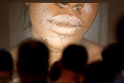 Imágenes de los efectos de una enfermedad de transmisión sexual en una clase en Nueva York.