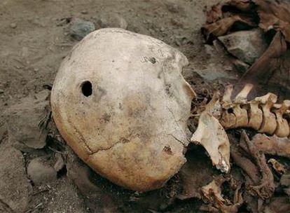Cráneo de un inca muerto por arma de fuego