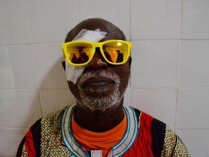 Amaye Sambou, tras la operación de cataratas.