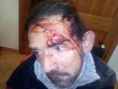 El hombre con parálisis cerebral agredido en Valencia en una imagen publicada por su hermano en Facebook.