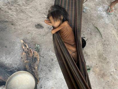 Niña yanomami con desnutrición y malaria, en la aldea de Maimasi, Brasil.