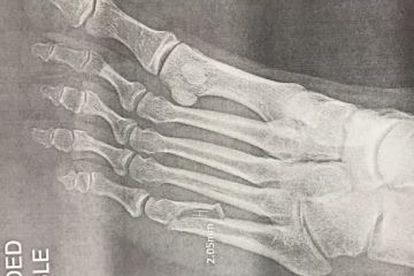 La radiografía donde se ve la fractura del dedo (izquierda) del pie de Axl Rose.