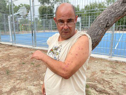 Paolo Barin enseña las cicatrices de las picaduras de las chinches. Hasta el jueves se alojaba en el Hostal Casa Sofía, en Tetuán.