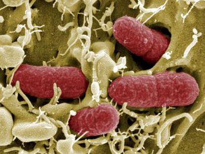 Un análisis de los fallecidos por bacterias resistentes a los antibióticos sugiere que cada año podrían morir 35.000 personas por esa causa en España