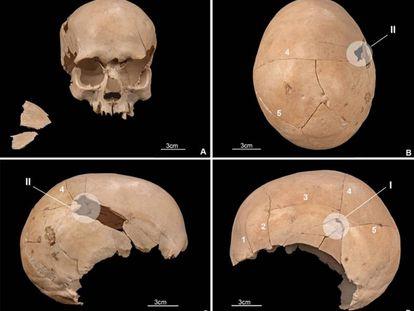 Cráneo de uno de los individuos asesinados en la cueva de Els Trocs, con impactos de flechas y objetos contundentes.