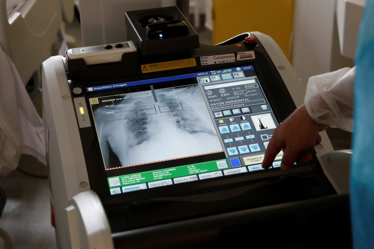Radiografía de pulmón a un paciente con coronavirus en un hospital de París, el lunes.