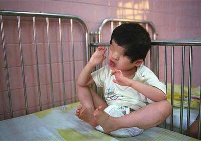 Niño de cuatro años nacido sin ojos por los efectos del <i>agente naranja.</i>