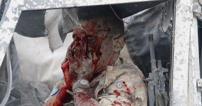 Uno de los militares italianos heridos en la explosión