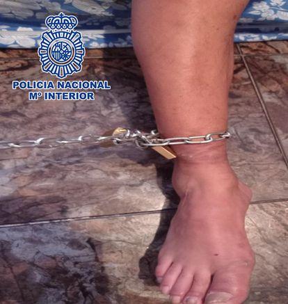 El pie derecho del hombre, con cadena y candados, cuando se suelta.