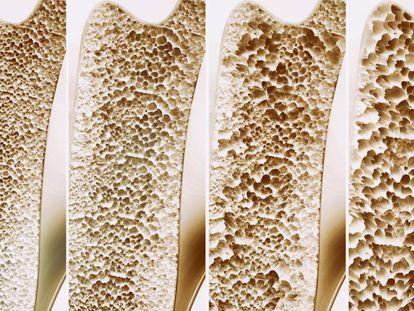 La cuatro etapas de la osteoporosis.