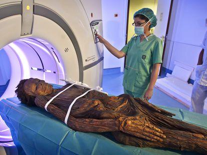 La momia guanche del Arqueológico Nacional sometida a una tomografía axial computarizada en el Hospital Quirón de Madrid.