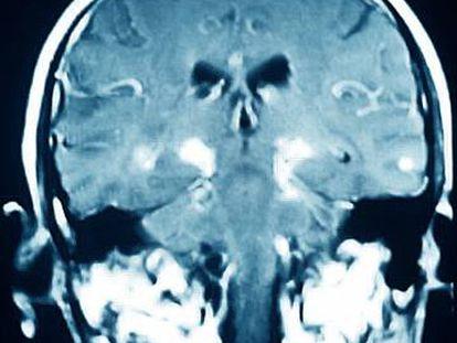 Un cerebro con párkinson.