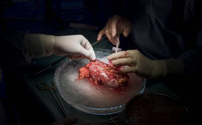 Vista de un trasplante de hígado con donante vivo.