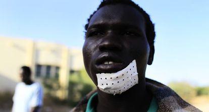 Un inmigrante herido, cerca de la frontera con Melilla, en agosto de 2012.