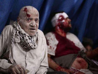 Heridos esperan a ser atendidos en un improvisado hospital en la cercada ciudad de Duma, un foco rebelde al noreste de Damasco.