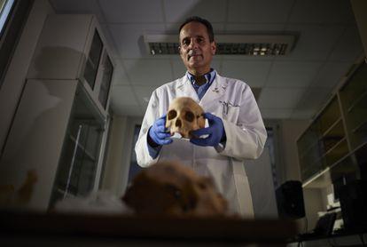El doctor Jose Antonio Lorente muestra un cráneo atribuido a Cristóbal Colón de un conjunto de restos óseos procedentes de Guadalajara, en la facultad de Medicina de Granada.