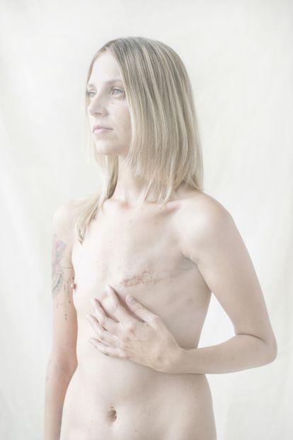 Retrato de Anya, víctima de cáncer de mama, en una imagen de Sergei Stroitelev, finalista de los Premios Luis Valtueña.