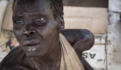 Como tantos sudaneses del sur, esta anciana sufre de inanición. Desde la crisis de 2013, los dos bandos rivales mantienen un enfrentamiento que ha costado al país una guerra civil, combates, enfermedades y hambre.