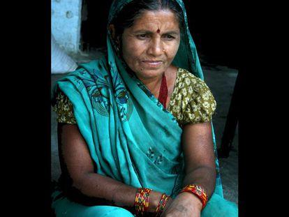 """A Ram Kumari Yadav, de unos 45 años (desconoce su fecha de nacimiento exacta), se le salió el útero por su vagina cuando parió a su primogénita. Era una adolescente. Sus padres la casaron tras tener su primera menstruación. """"Rápido me quedé embarazada"""", recuerda. """"Después del parto fui unos días a casa de mi madre a descansar y noté que algo se salía. Ella me dijo que era normal después de dar a luz y lo trató de meter de nuevo"""", relata en voz baja y visiblemente nerviosa. Doce días después volvió a trabajar en el campo y la casa -""""si no lo hacía mi suegra me pegaba""""-, y el bulto entre sus piernas se fue haciendo más grande. Así, Ram Kumari lleva tres décadas con dolores en la espalda y el abdomen, sin poder sentarse normalmente, ni juntar sus rodillas. Ha parido otros cuatro hijos y sigue haciendo todas las labores del hogar. """"Me siento muy triste, me pregunto por qué me pasa esto"""". Como ella, 600.000 mujeres en Nepal (el 10% de la población femenina) sufren prolapso uterino, de las cuales un tercio necesita una operación. Muchas no se la pueden hacer aunque es gratuita porque sus maridos no les conceden la ciudadanía, obligatoria para que el Estado les realice la intervención. El esposo de Ram Kumari no solo se lo impide porque no quiere dejar de mantener relaciones sexuales durante los días de reposo tras la cirugía sino que, además, le pega cuando llega borracho a casa. Pese a sus historias comunes y aunque viven a escasos pasos unas de otras, las mujeres no hablan de sus problemas, mucho menos de si tienen prolapso. """"No conozco a otras que lo tengan. Y mis vecinos no saben mi problema, y si lo supieran no me sentiría bien. Nadie habla de esto. La gente no abre su corazón""""."""