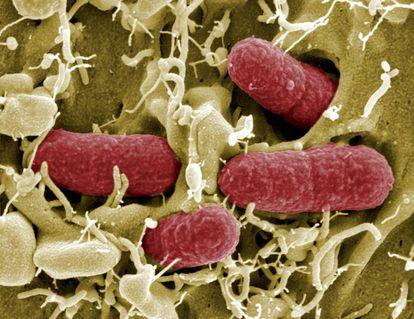 Colonia de bacterias fecales.